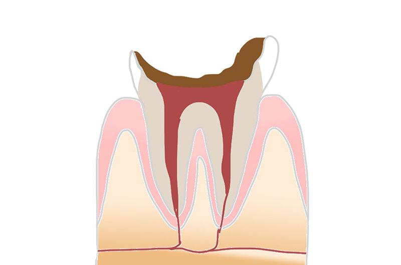 C4(歯冠部分が崩壊した虫歯)