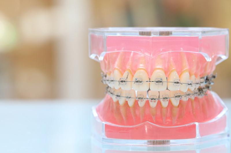 歯並び・噛み合わせを整える治療です