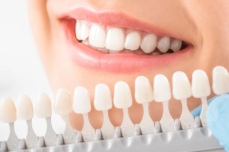 歯の変色や黄ばみを改善・白く美しい歯へ